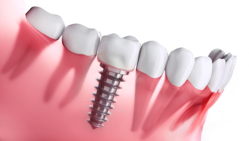 Implantatversorgung Dr. Julia Lücking Adelsdorf -Zahnimplantat im Unterkiefer